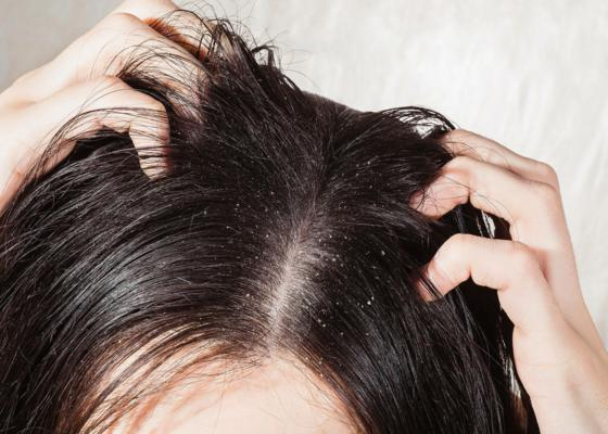 Dandruff-Treatment-1_1.jpg