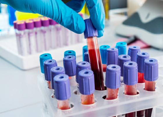 T7-blood-tests-f_1.jpg